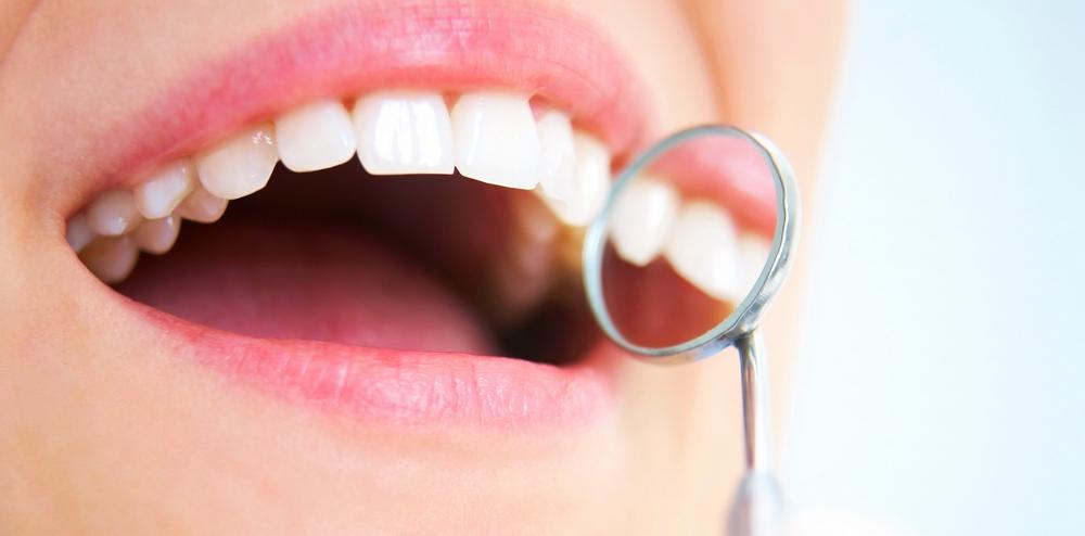 Ce nu aveti voie sa faceti dupa extractia unui dinte
