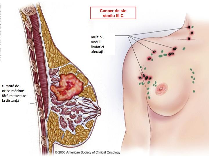 cancer la san femei