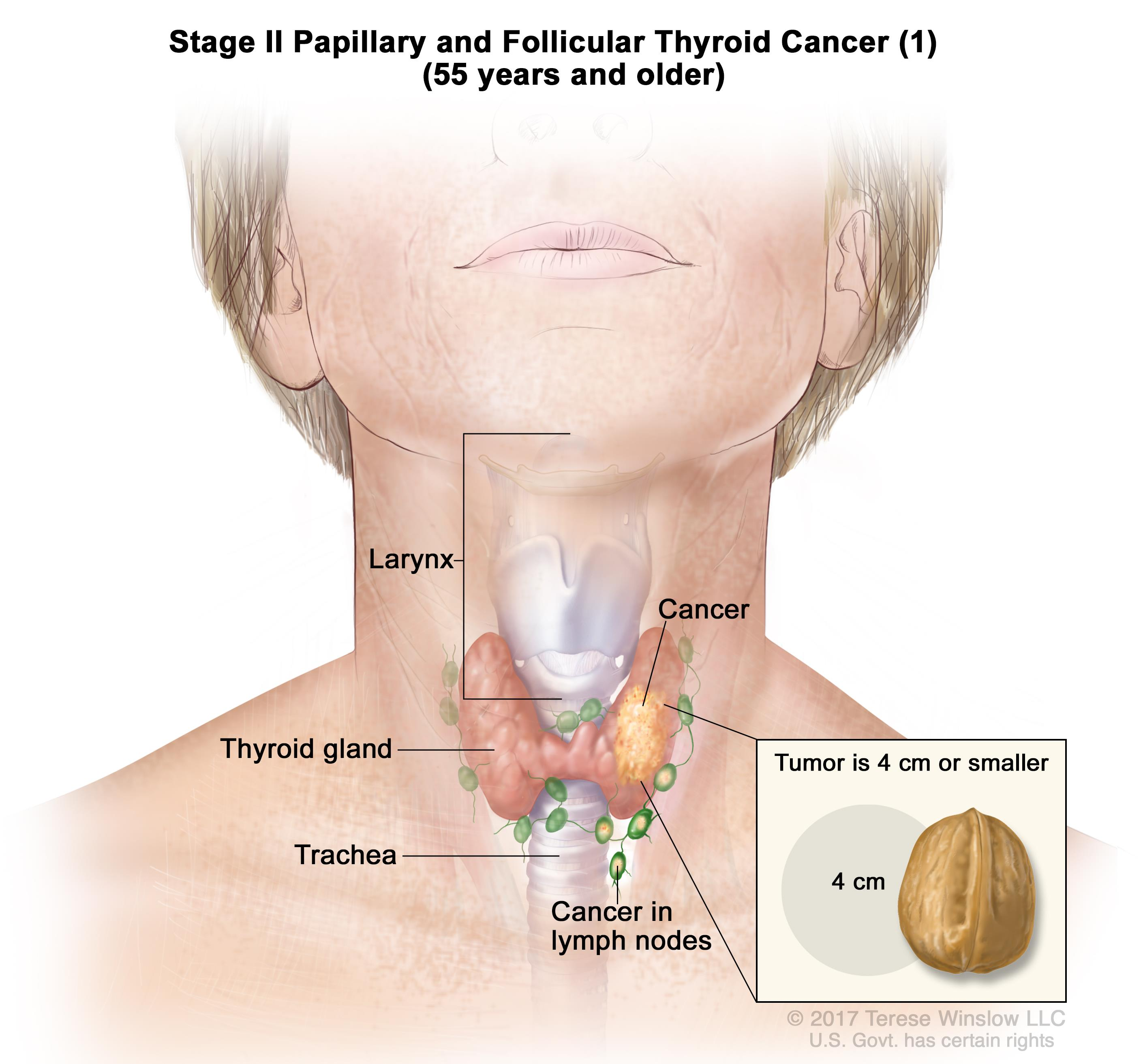 FAMILIAL SYNDROMIC PAPILLARY THYROID CARCINOMA - REPORT OF TWO CASES