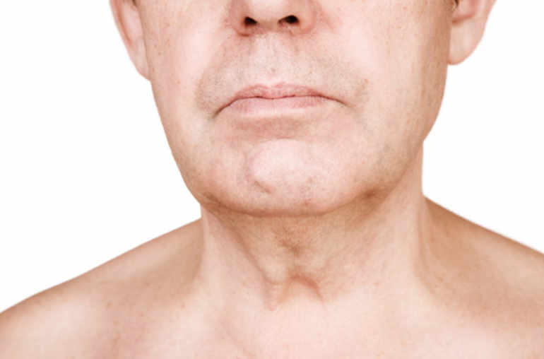 papillomavirus homme gorge symptomes