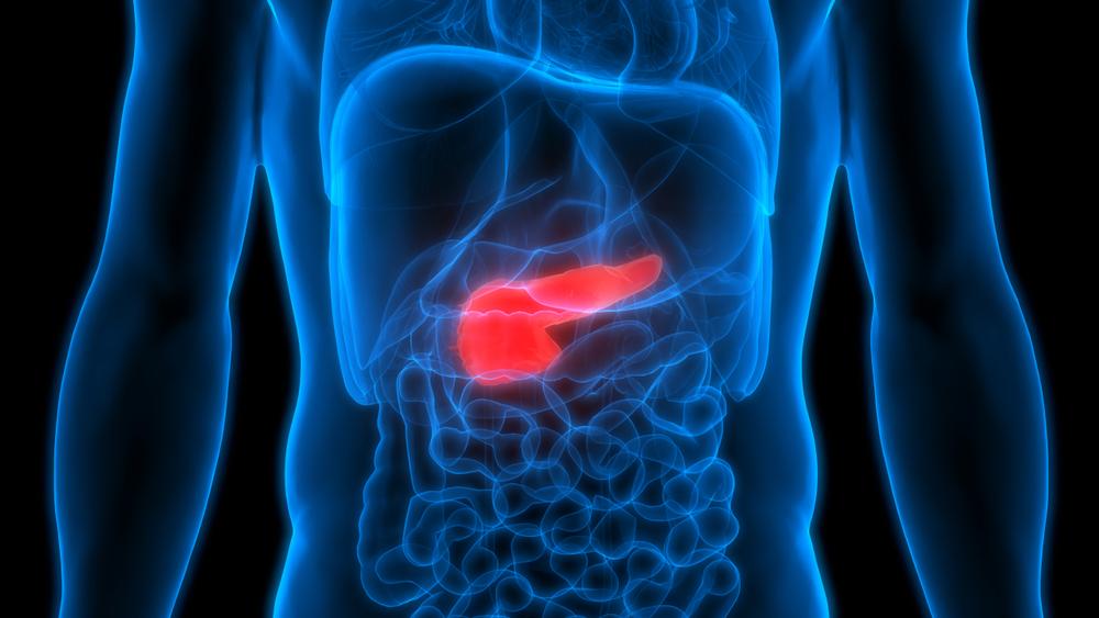 cancer de pancreas cura