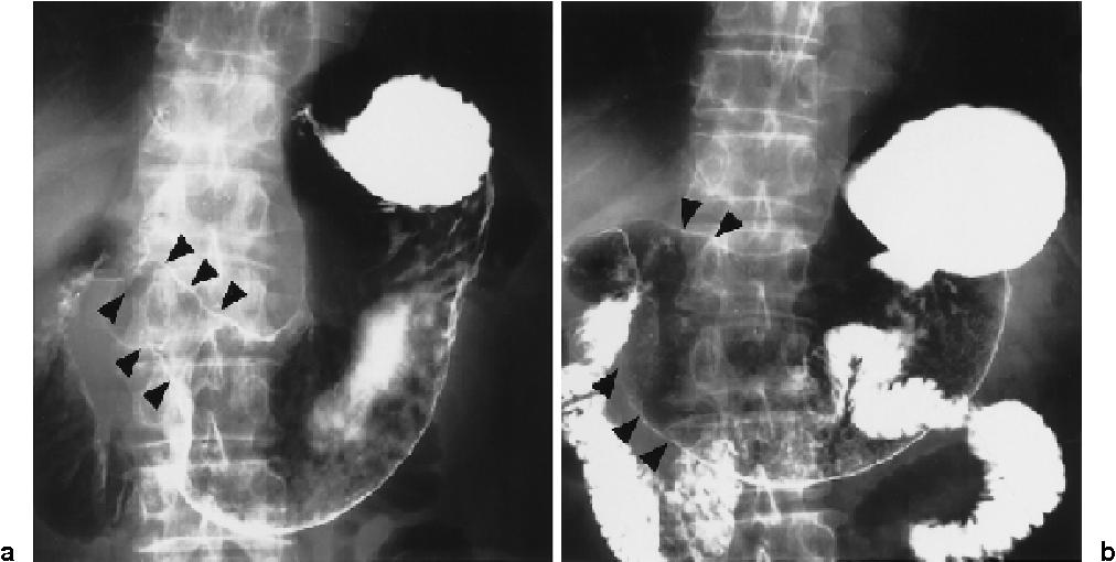 gastric cancer lung metastasis