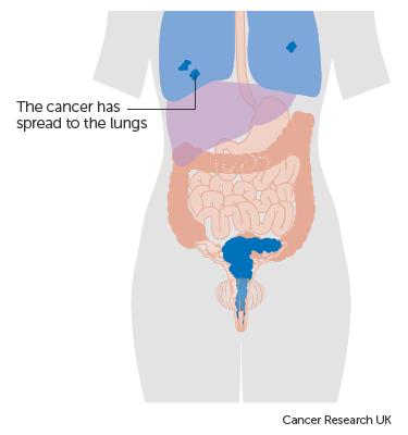 metastatic cancer final stages