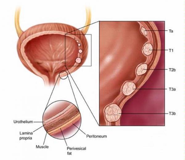 simptomele cancerului vezicii urinare