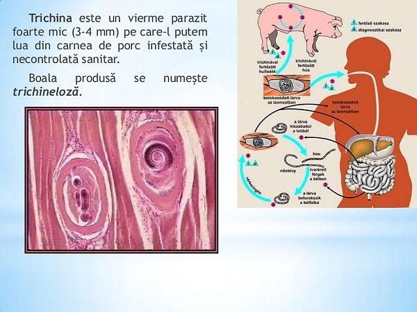 Paraziții în plămâni omului simptome - Bactefort