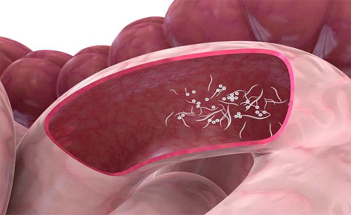 virus del papiloma humano en la lengua