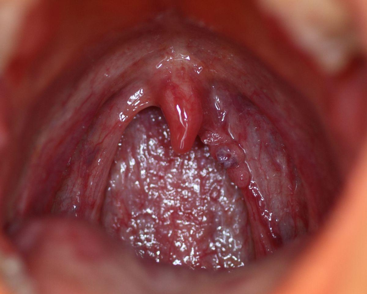 human papillomavirus on throat