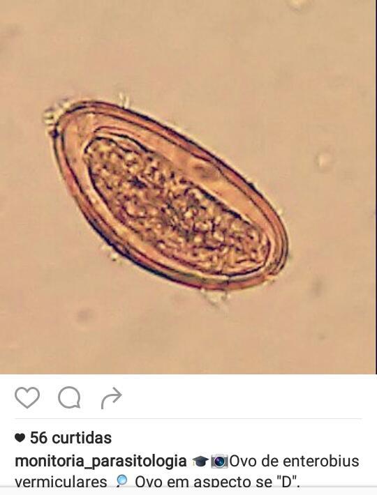 enterobius vermicularis kind papilloma virus research