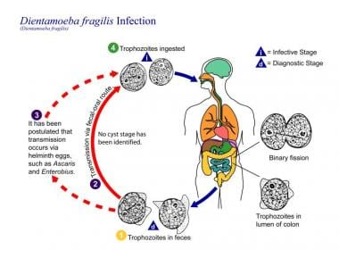enterobius vermicularis treatment medscape