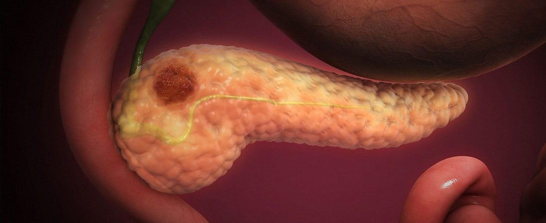 Cancerul pancreatic