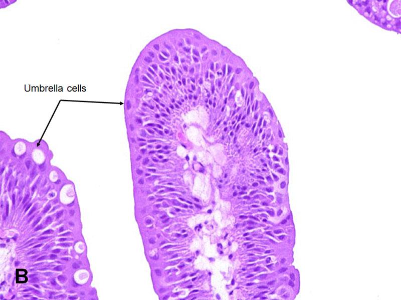 urothelial papilloma vs carcinoma