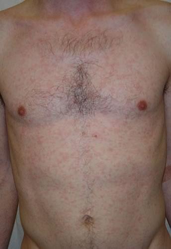 Boli cu transmitere sexuala - top 12 boli cu simptome si tratament