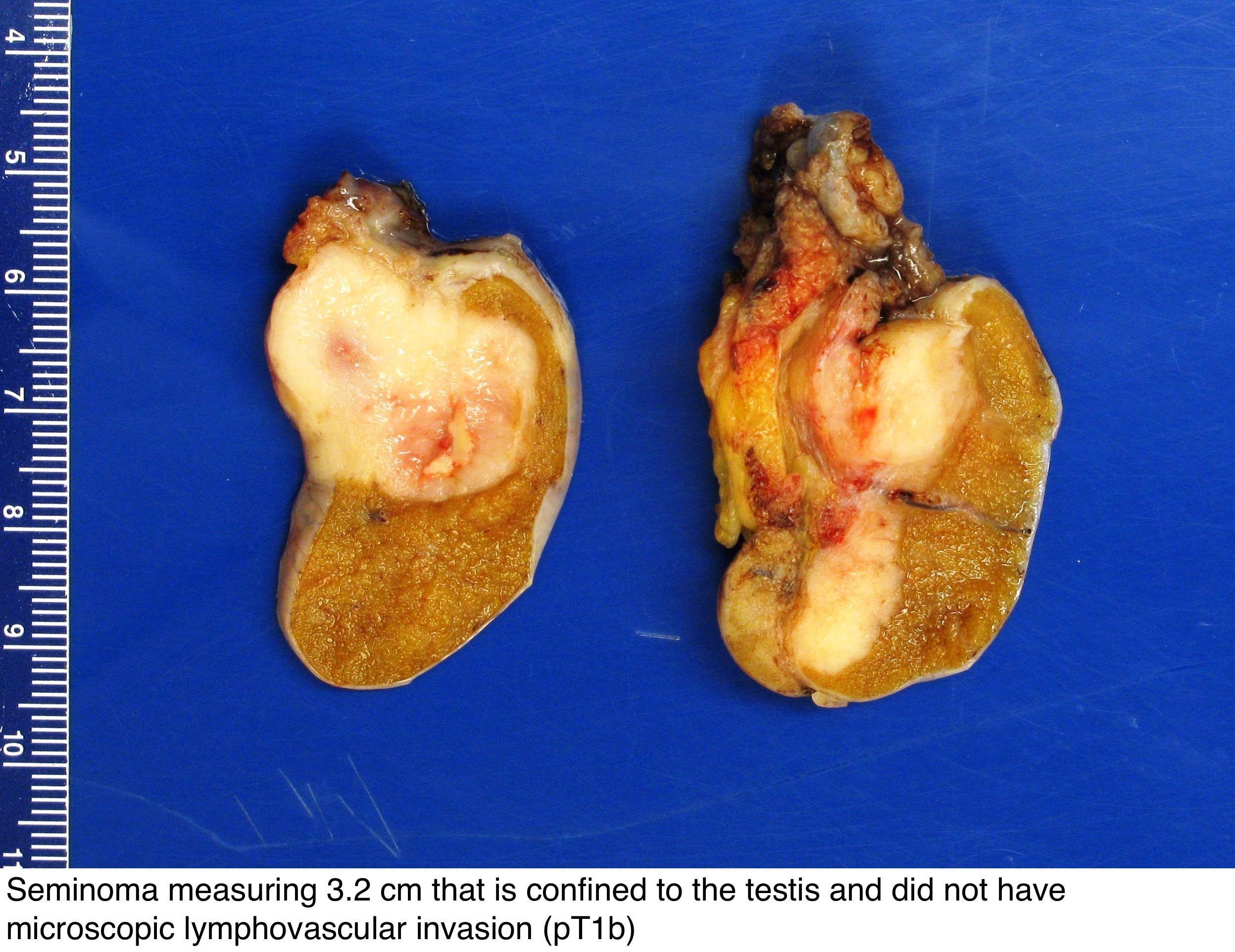 human papillomavirus (hpv) nedir paraziti intestinali netratati