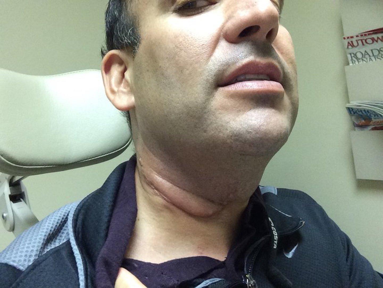 hpv causes male cancer papilloma virus al naso