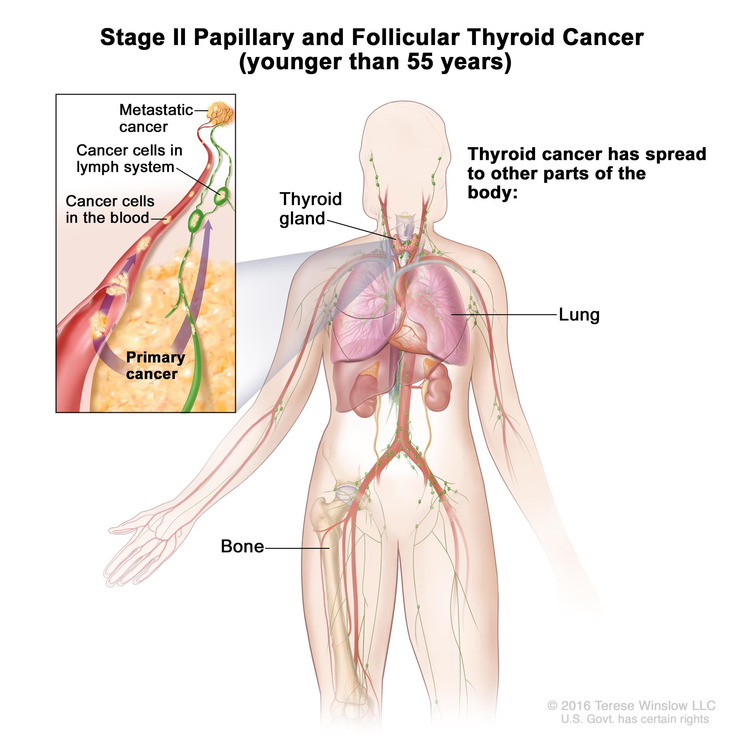 papillary thyroid cancer patient information