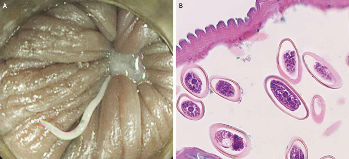 ductal papilloma icd 10 hpv positive base of tongue cancer