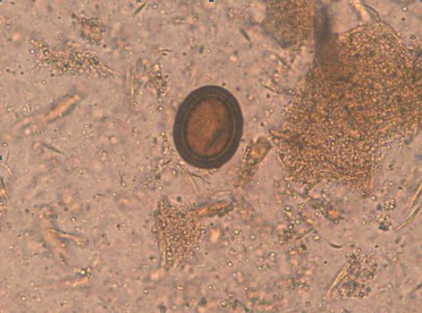 analize depistare paraziti intestinali comment soigner le papillomavirus chez lhomme