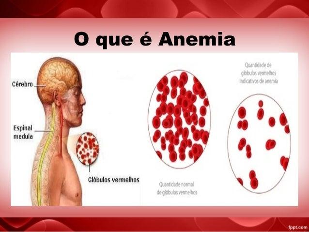 19.Anemia Fiziologica a Sugarului Mic