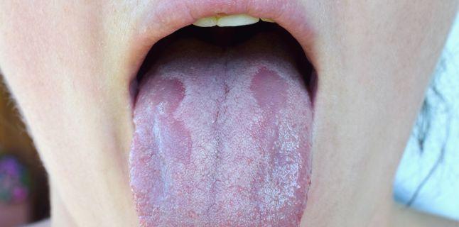 Cancerul cavităţii bucale: simptome, complicaţii şi tratament
