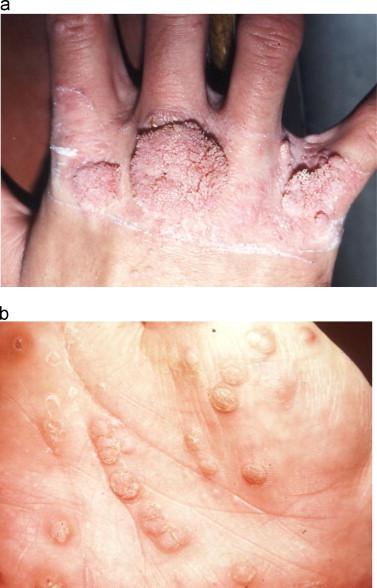 hpv skin sores
