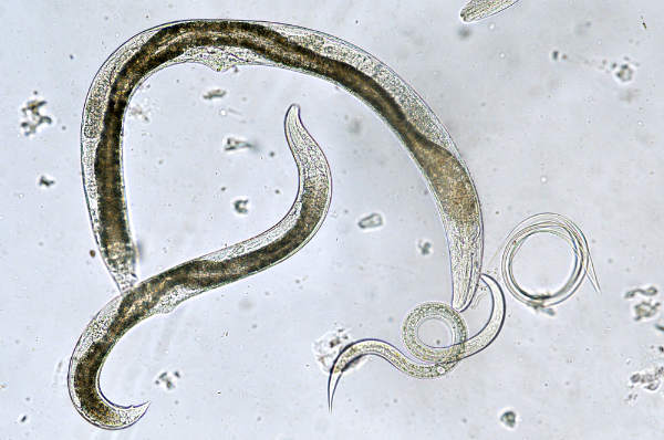 Tenia – paraziti intestinali
