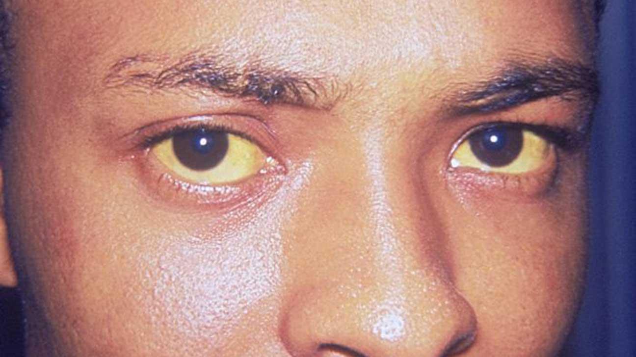 hpv no palato recurrent laryngeal papillomatosis treatment
