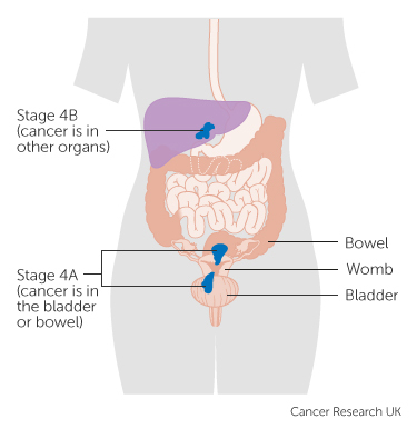 endometrial cancer is dangerous hpv and papilloma