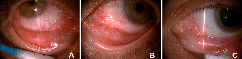 Traumatologia Globului Ocular Si a Anexelor