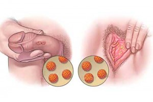 papiloma humano en jovenes cancer peritoneal pronostico