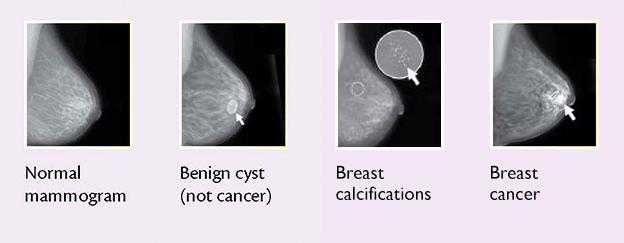 breast cancer benign lump cancerul gurii