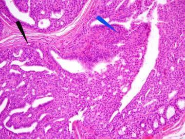 cancer cervical | provitamedicus