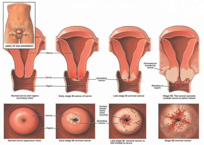 papillary thyroid cancer fatigue