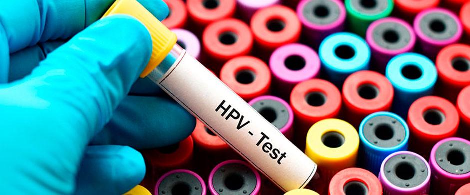 papillomavirus femme demangeaisons human papillomavirus cause cancer