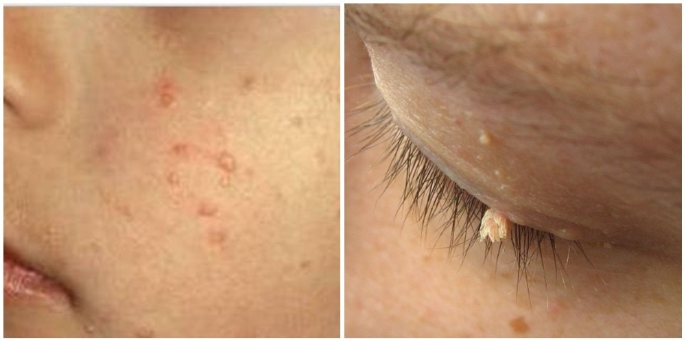 papilloma on face removal