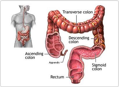 cancer colon transverse virus papiloma humano cie 10