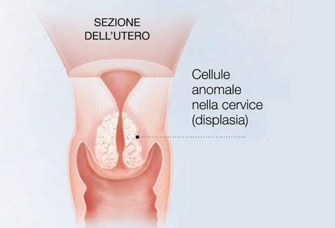 CONDILOMA - Definiția și sinonimele condiloma în dicționarul Italiană