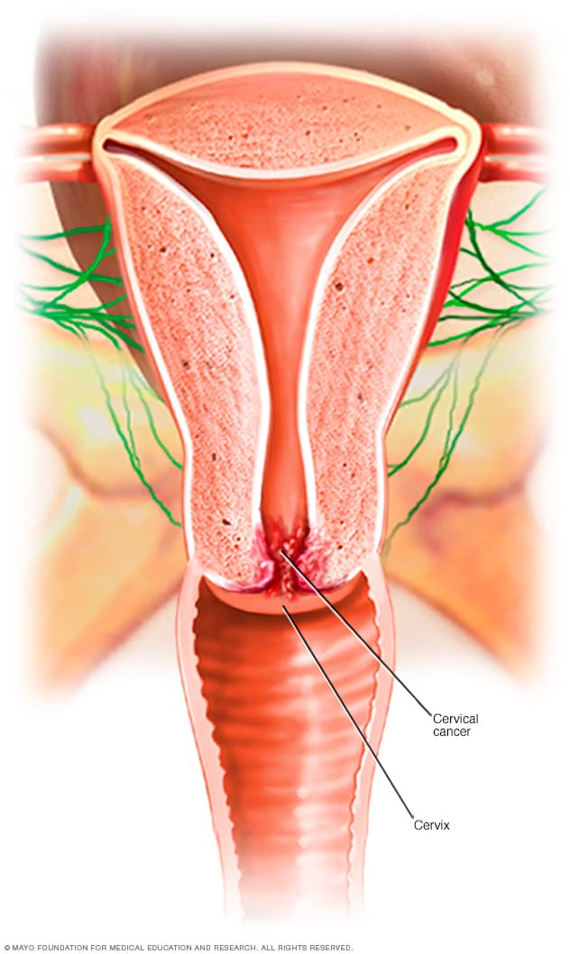 cancer cervical sintomas mujer