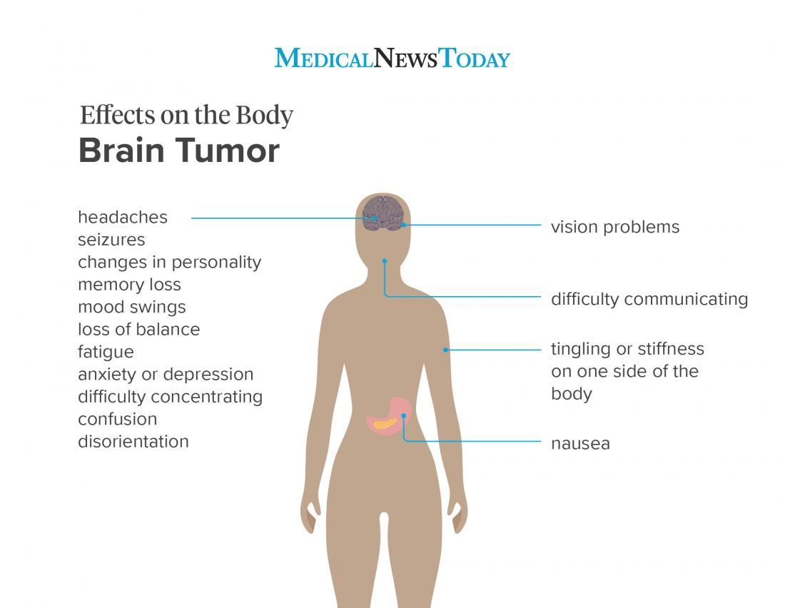 cancer benign cause hpv warzen bilder