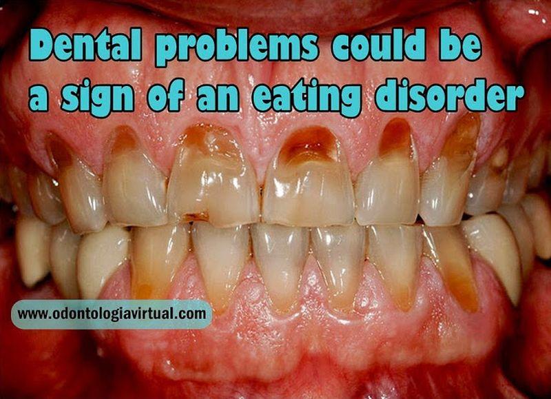 Dinţi frumoşi, dinţi sănătoşi - MExMobil