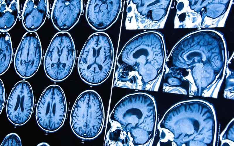 cancer cerebral secundario