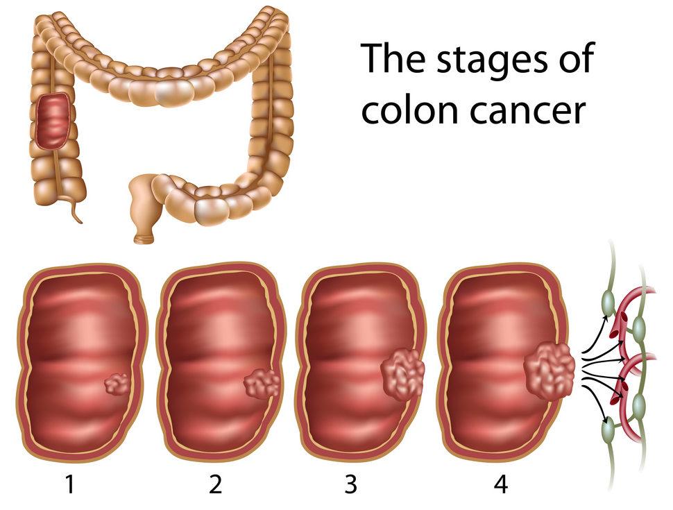 cancer colon benign