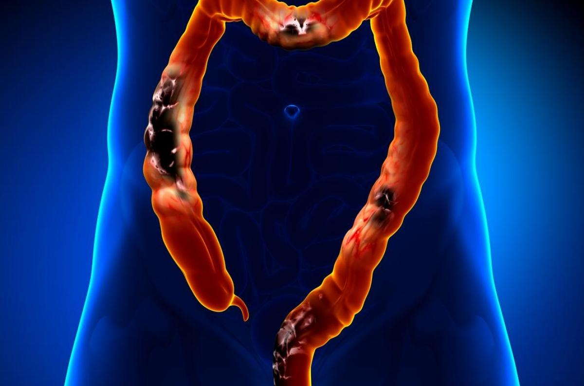 bacterii utilizate in industria alimentara gastric cancer borrmann classification
