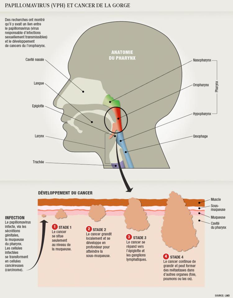 vaccino anti papilloma virus controindicazioni