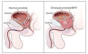Tratamento do adenoma da próstata por um punho