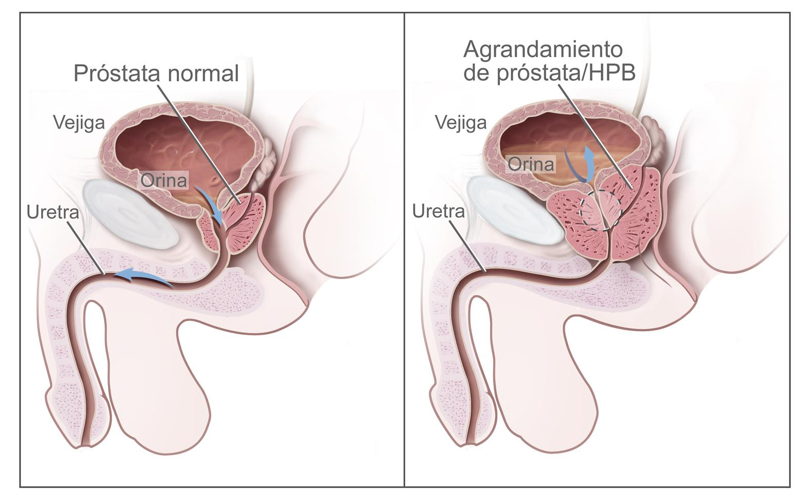 hpv and ovarian cancer