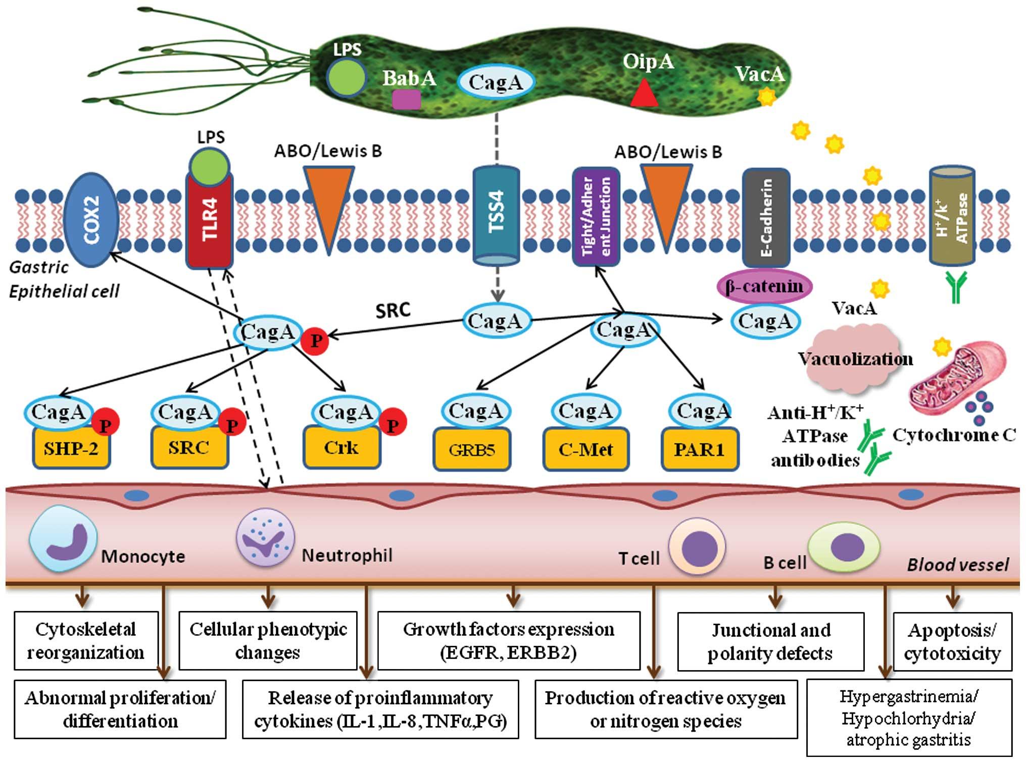 7 Intrebari si raspunsuri despre infectia cu Helicobacter Pylori
