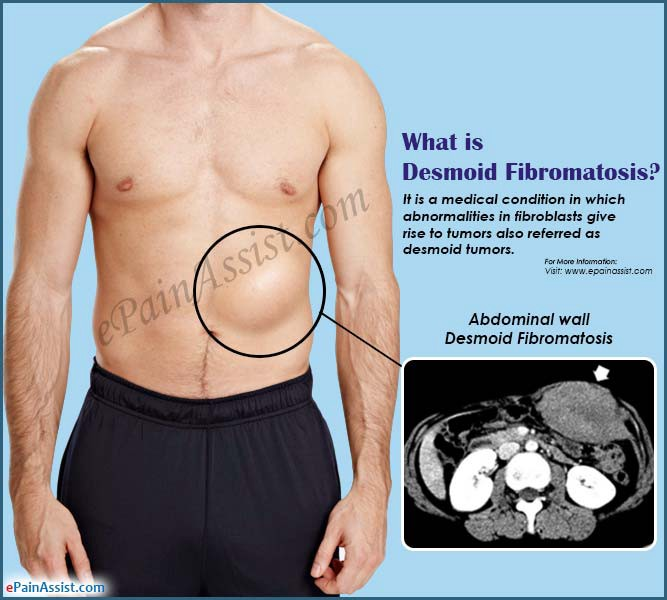 cancer in abdominal muscle