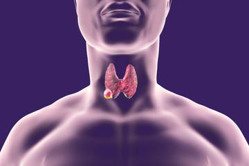hpv impfung gebarmutterhalskrebs papilloma virus e saliva