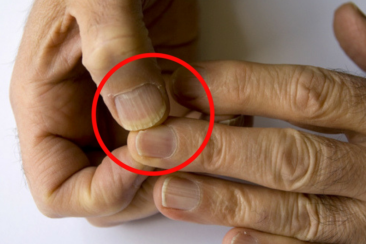 papilloma intraduttale senza secrezione papillomavirus homme que faire
