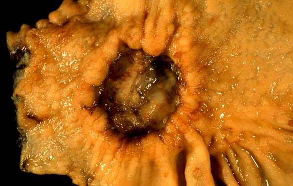 cancer malign simptome hpv virus zinc